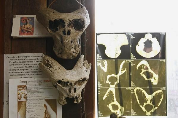 """Таинственный череп """"инопланетянина"""" и след """"Аненербе"""""""